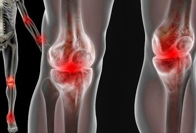 El mejor remedio casero contra la inflamación de las articulaciones